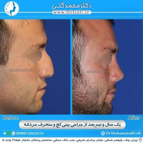 جراحی بینی کج و منحرف 7