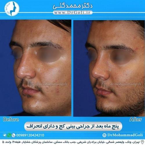 جراحی بینی کج و منحرف 8