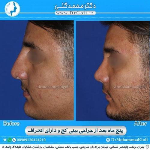 جراحی بینی کج و منحرف 9