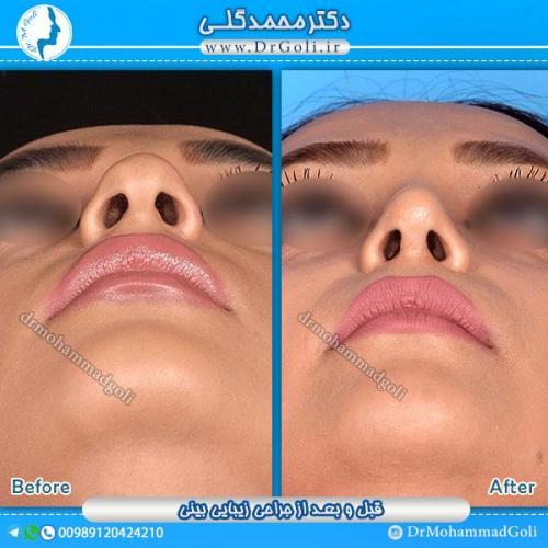 جراحی-زیبایی-بینی-11
