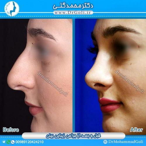 جراحی-زیبایی-بینی-12