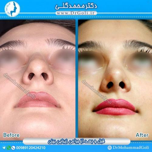 جراحی-زیبایی-بینی-13
