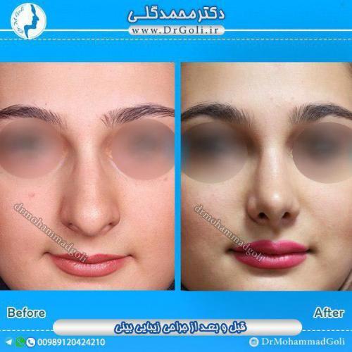 جراحی-زیبایی-بینی-15