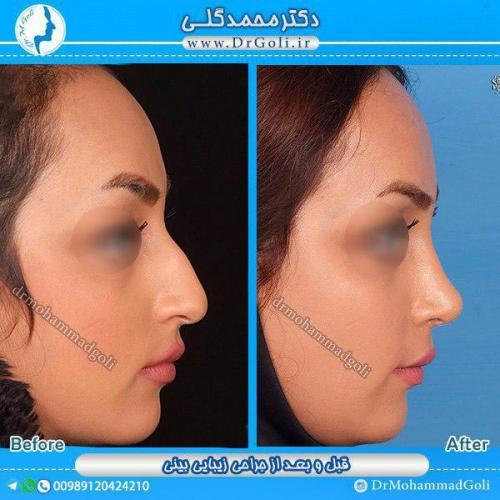 جراحی-زیبایی-بینی-17