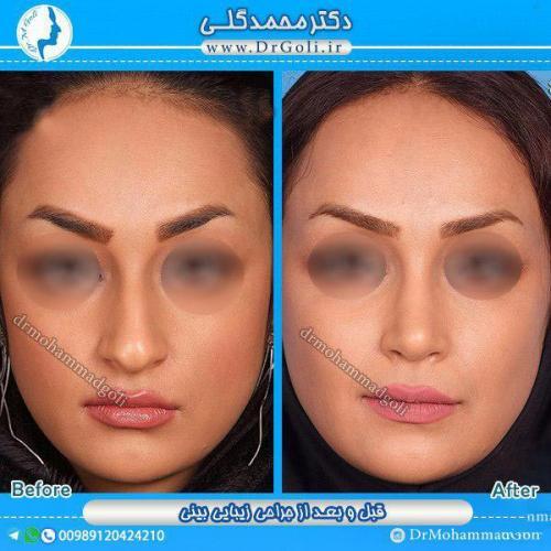 جراحی-زیبایی-بینی-18