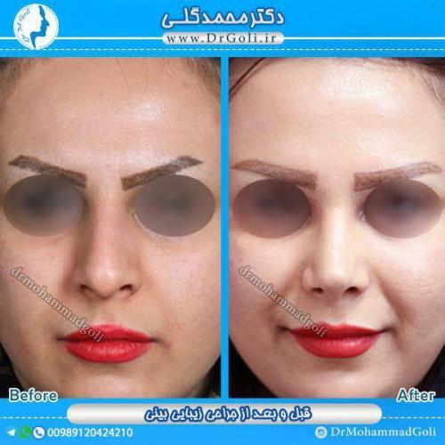جراحی-زیبایی-بینی-19