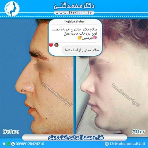جراحی-زیبایی-بینی-22