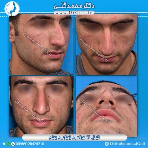 جراحی-زیبایی-بینی-28