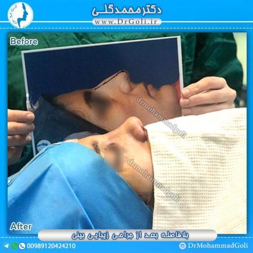 جراحی-زیبایی-بینی-31