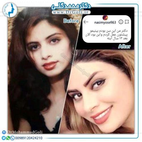 جراحی-زیبایی-بینی-36