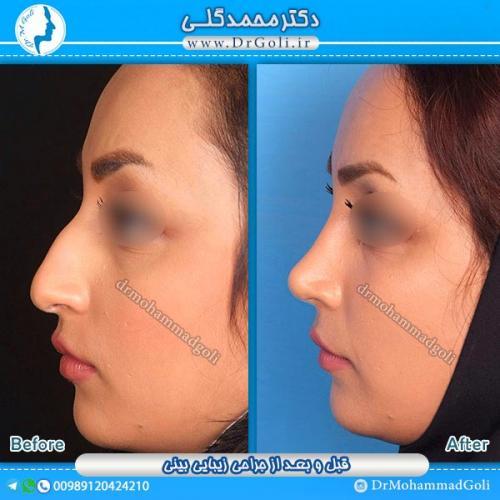 جراحی-زیبایی-بینی-7
