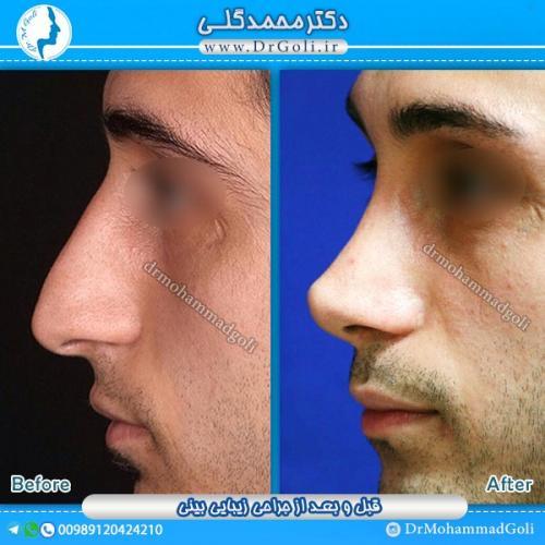 جراحی-زیبایی-بینی-8