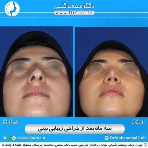 جراحی زیبایی بینی 155