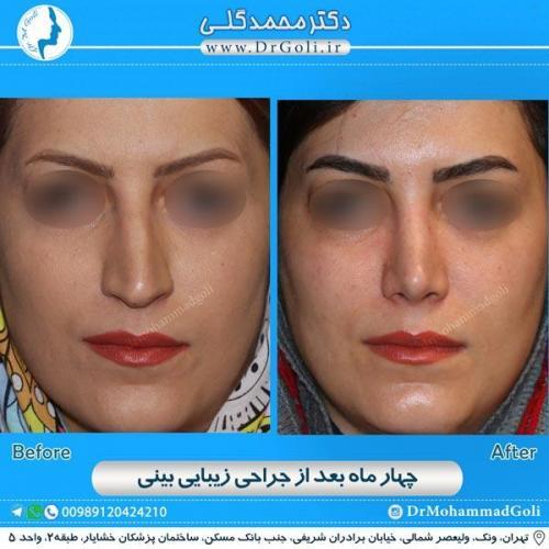 جراحی زیبایی بینی 156