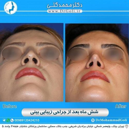 جراحی زیبایی بینی 157