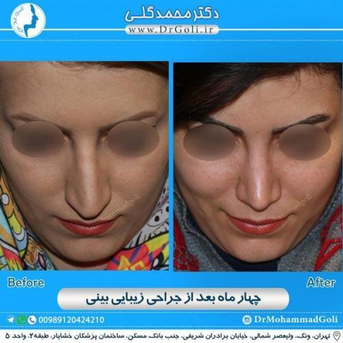 جراحی زیبایی بینی 158