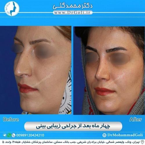 جراحی زیبایی بینی 159