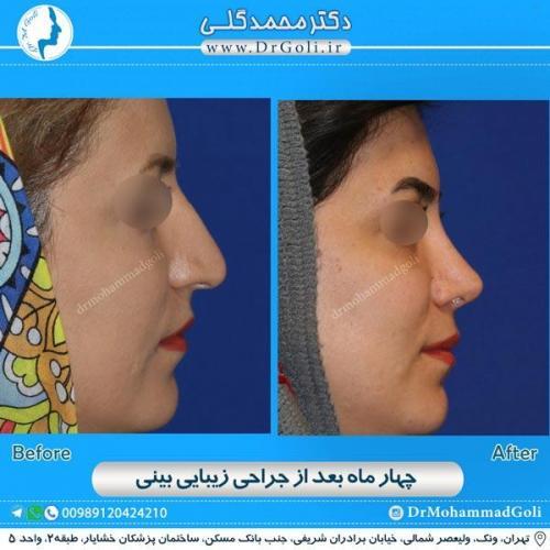 جراحی زیبایی بینی 160
