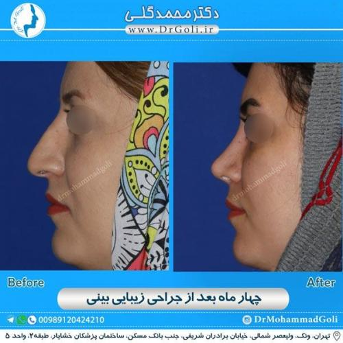 جراحی زیبایی بینی 162