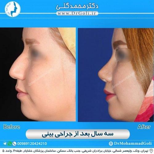 جراحی زیبایی بینی 164