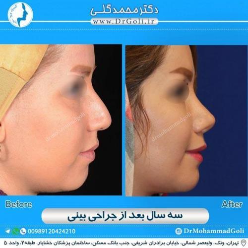جراحی زیبایی بینی 165