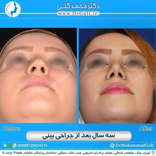 جراحی زیبایی بینی 166