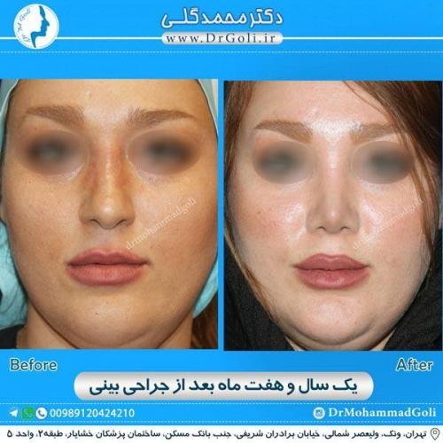 جراحی زیبایی بینی 167