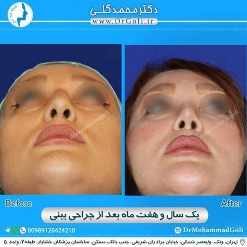 جراحی زیبایی بینی 168