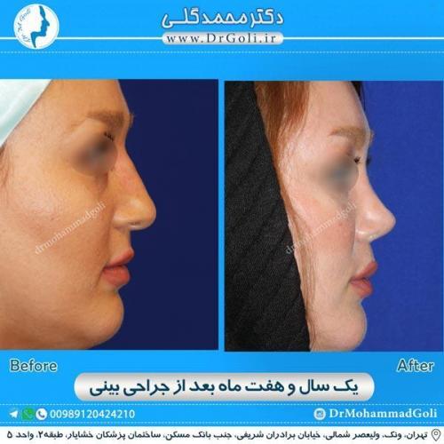 جراحی زیبایی بینی 169
