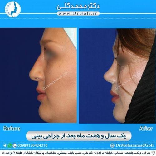 جراحی زیبایی بینی 170
