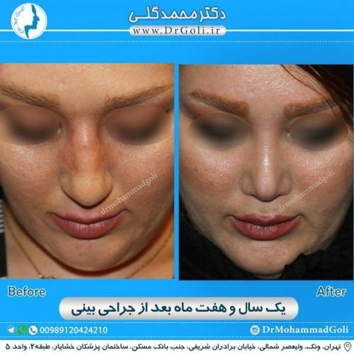 جراحی زیبایی بینی 172
