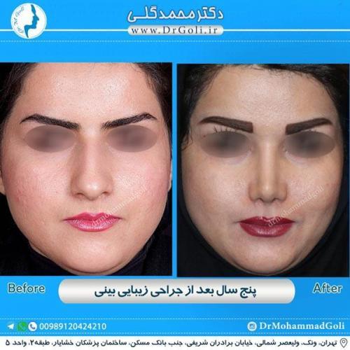 جراحی زیبایی بینی 173
