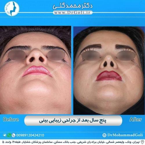 جراحی زیبایی بینی 174