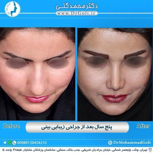 جراحی زیبایی بینی 175