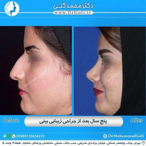 جراحی زیبایی بینی 177