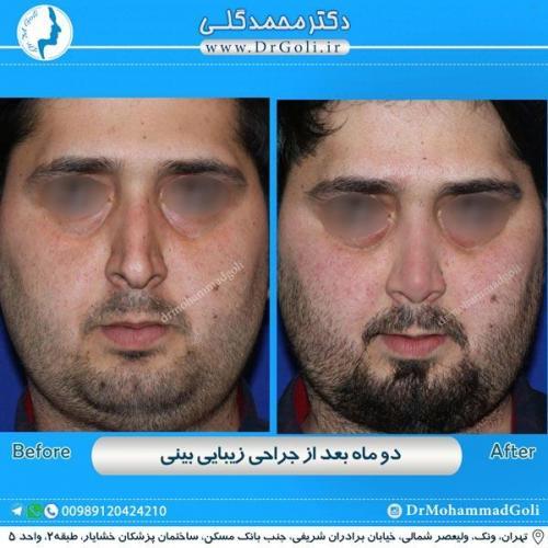 جراحی زیبایی بینی 178