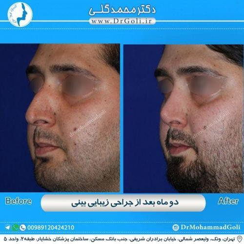 جراحی زیبایی بینی 179