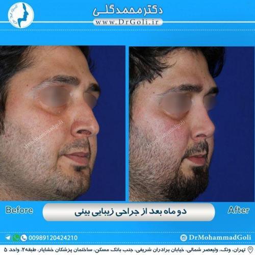 جراحی زیبایی بینی 180