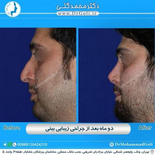 جراحی زیبایی بینی 181
