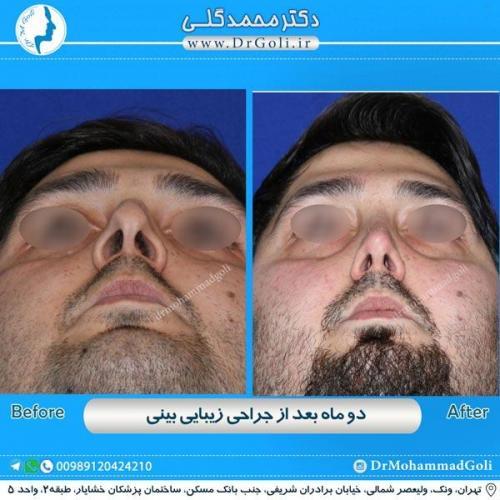 جراحی زیبایی بینی 183
