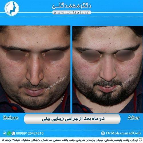 جراحی زیبایی بینی 184