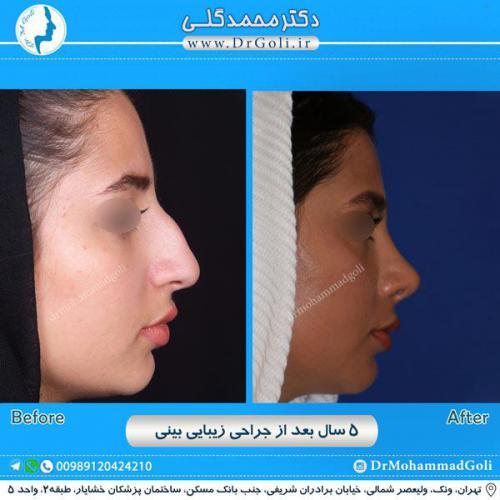 جراحی زیبایی بینی 218