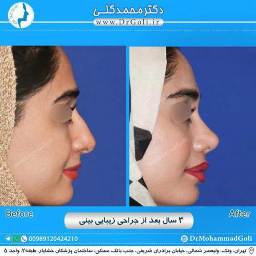 جراحی زیبایی بینی 219