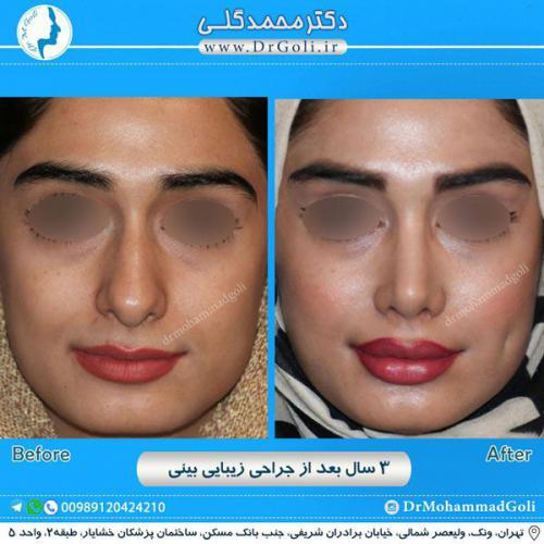 جراحی زیبایی بینی 220