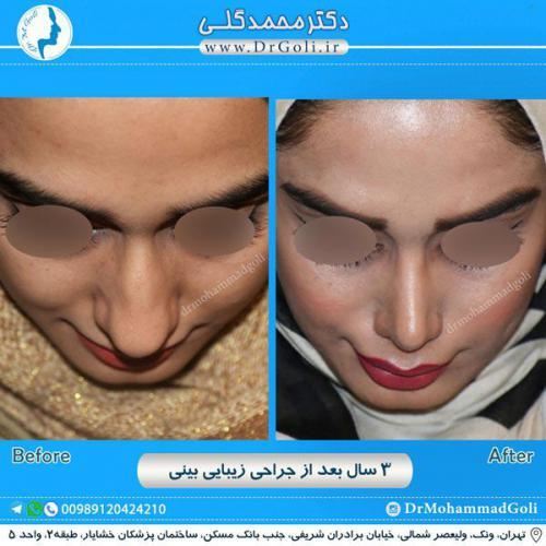 جراحی زیبایی بینی 221