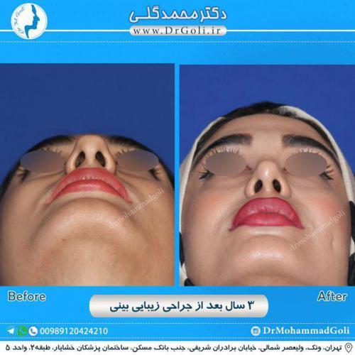 جراحی زیبایی بینی 222