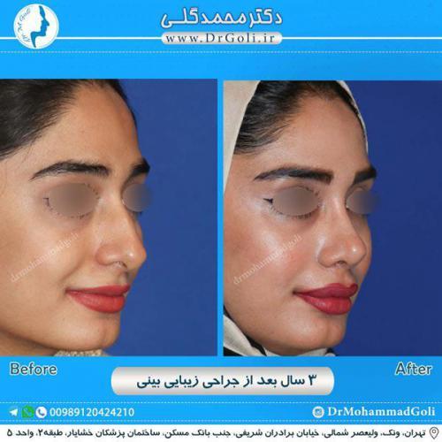 جراحی زیبایی بینی 223