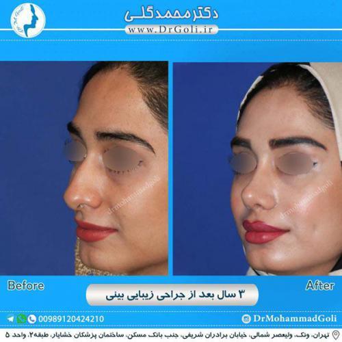 جراحی زیبایی بینی 224