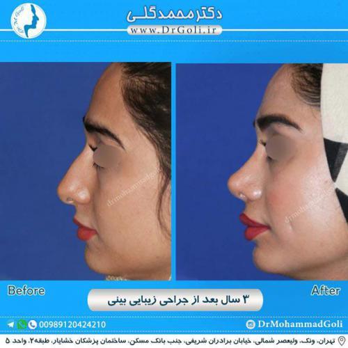 جراحی زیبایی بینی 225