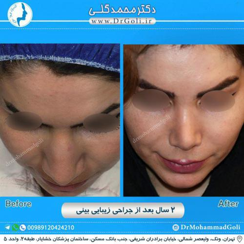 جراحی زیبایی بینی 227